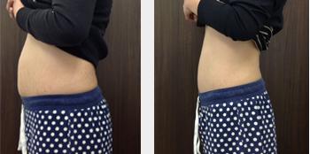 痩身と健康美を追及したトータルビューティコース